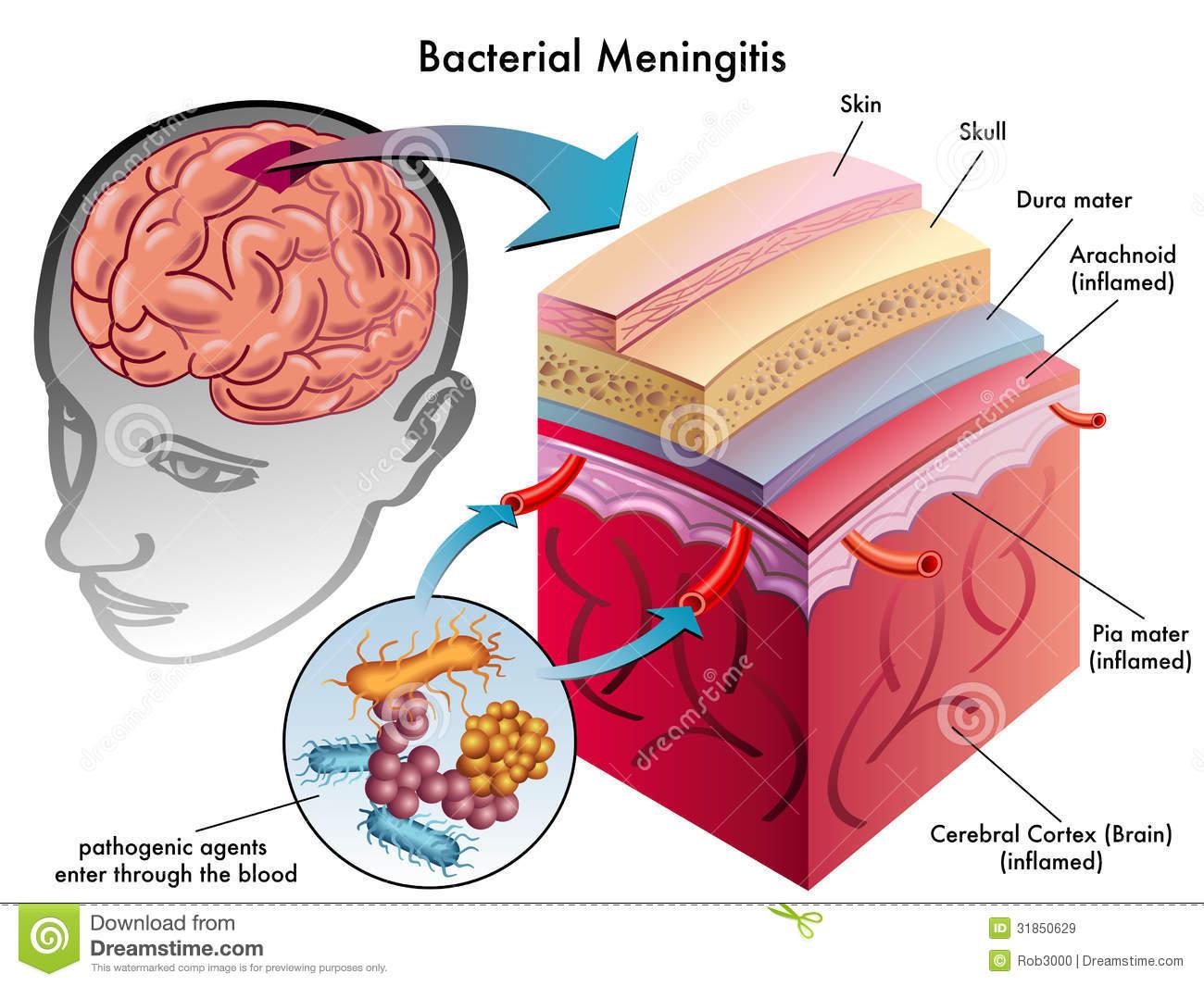 Meningitis. | Dr. Zachary Lahlou