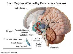 Parkinsons-Disease.204114724_std