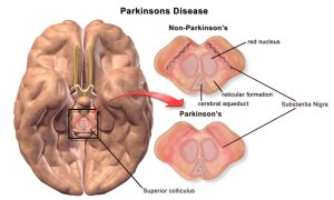 parkinsons-disease-brain-differences