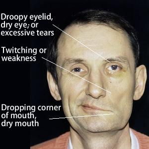 signs_of_facial_paralysis