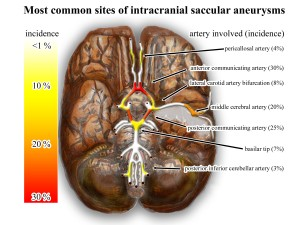 Wikipedia_intracranial_aneurysms_-_inferior_view_-_heat_map
