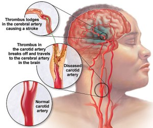 Transient-Ischemic-Attacks