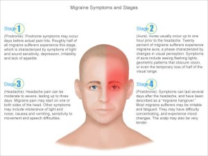 migraine-headache-symptoms